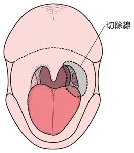 ガン 扁桃 腺